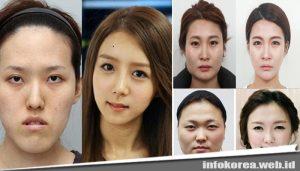 7 Fakta Operasi Plastik di Korea Selatan